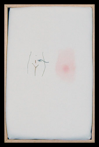 Karin Stothart. Ileostomy Drainage, 2009. Hand colored transfer on fabric, thread, felt, foam padding, wood. 17 x 11.25 x 3.5 inches.